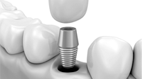 Dental screws